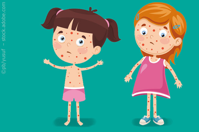 Mumps in der Kita –das gilt es zu beachten